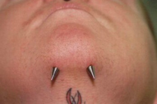 spike microdermal