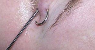 piercing palpebra inferiore