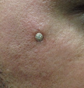gold microdermal